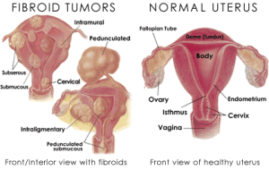 fibroid-tumors