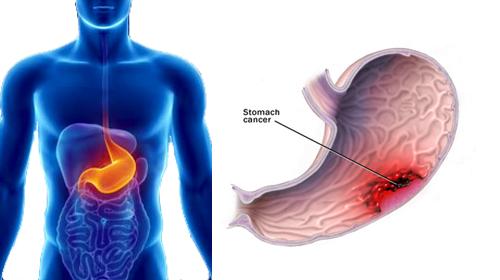 পাকস্থলী ক্যান্সার, Stomach Cancer