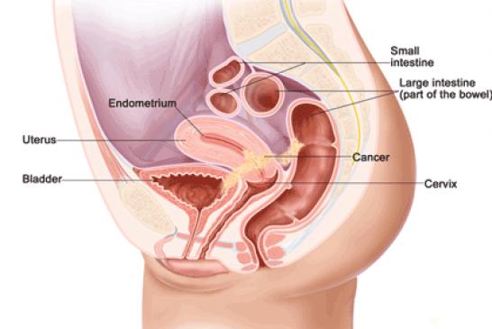 স্ত্রী-জননাঙ্গের ক্যান্সার, Female Genitalia Cancer