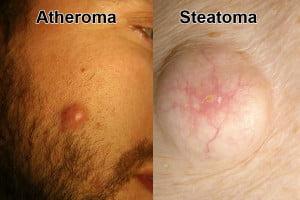 Atheroma steatoma টিউমারের চিকিৎসা, ছবি, লক্ষণ ও রেপার্টরি। টিউমারের চিকিৎসা, ছবি, লক্ষণ ও রেপার্টরি। Atheroma steatoma
