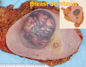 BreastCancer scirrhous