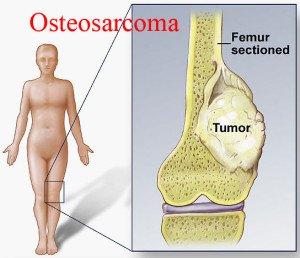 Osteosarcoma হাত ও পায়ের টিউমারের ৩১ টি হোমিওপ্যাথি লক্ষণ, ছবি, ঔষধ ও রেপার্টরি। হাত ও পায়ের টিউমারের ৩১ টি হোমিওপ্যাথি লক্ষণ, ছবি, ঔষধ ও রেপার্টরি। Osteosarcoma