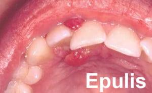 epulis1 টিউমারের চিকিৎসা, ছবি, লক্ষণ ও রেপার্টরি। টিউমারের চিকিৎসা, ছবি, লক্ষণ ও রেপার্টরি। epulis1