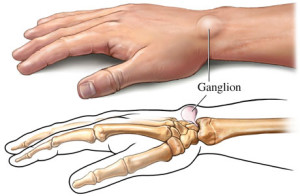 ganglion টিউমারের চিকিৎসা, ছবি, লক্ষণ ও রেপার্টরি। টিউমারের চিকিৎসা, ছবি, লক্ষণ ও রেপার্টরি। ganglion