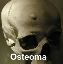 osteoma টিউমারের চিকিৎসা, ছবি, লক্ষণ ও রেপার্টরি। টিউমারের চিকিৎসা, ছবি, লক্ষণ ও রেপার্টরি। osteoma