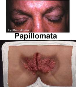 papillomata2 টিউমারের চিকিৎসা, ছবি, লক্ষণ ও রেপার্টরি। টিউমারের চিকিৎসা, ছবি, লক্ষণ ও রেপার্টরি। papillomata2