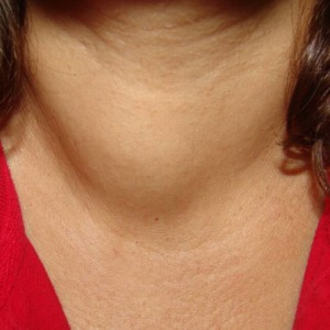 Thyroid_Mass_Jun_08_SQ আভ্যন্তরীণ অঙ্গের টিউমারের চিকিৎসা, ছবি, লক্ষণ ও রেপার্টরি। আভ্যন্তরীণ অঙ্গের টিউমারের চিকিৎসা, ছবি, লক্ষণ ও রেপার্টরি। Thyroid Mass Jun 08 SQ