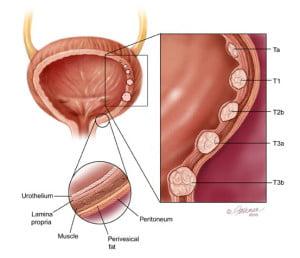 anatomy_bladdercancer আভ্যন্তরীণ অঙ্গের টিউমারের চিকিৎসা, ছবি, লক্ষণ ও রেপার্টরি। আভ্যন্তরীণ অঙ্গের টিউমারের চিকিৎসা, ছবি, লক্ষণ ও রেপার্টরি। anatomy bladdercancer