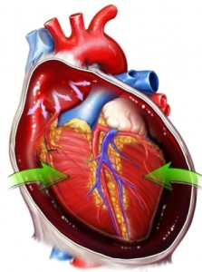 cardiac-tumors আভ্যন্তরীণ অঙ্গের টিউমারের চিকিৎসা, ছবি, লক্ষণ ও রেপার্টরি। আভ্যন্তরীণ অঙ্গের টিউমারের চিকিৎসা, ছবি, লক্ষণ ও রেপার্টরি। cardiac tumors