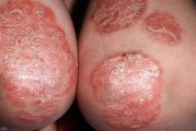 সোরিয়াসিস কি? ও সোরিয়েসিসের (Psoriasis) চিকিৎসা। (টিউটোরিয়াল সহ)